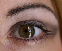 dry-eyes1