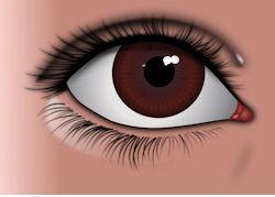 cataract surgery1